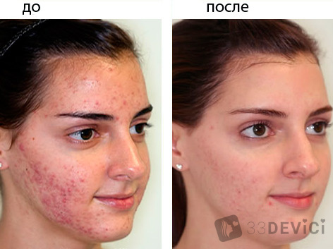 mederma-acne