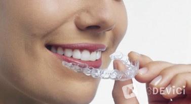 Что такое капы для выравнивания зубов и зачем они нужны?