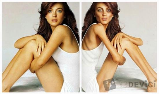 Анорексия фото до и после
