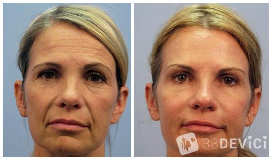 ботокс лица фото до и после