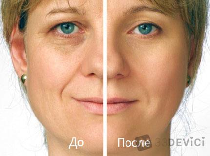 1392400090_zhenschina-do-i-posle-biorevitalizacii