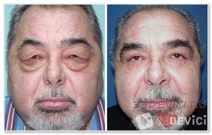 Блефаропластика фото до и после - 3