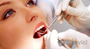 imp-ceny-implantacija