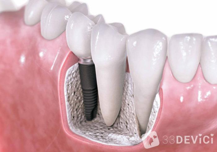 implantatsiya-zubov-700x490