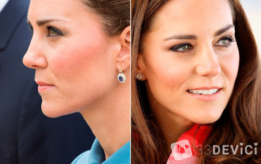 kate-middleton-nose