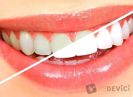 методы отбеливания зубиков