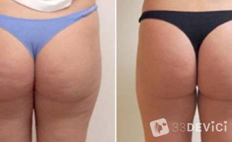 фото до и после курса антицеллюлитного массажа