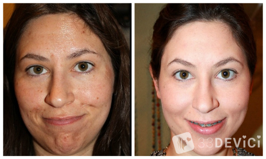 Фото до и после гликолевого пилинга