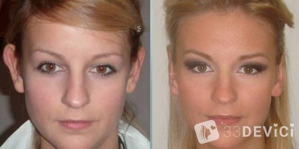 фофографии до и после коррекции ушей