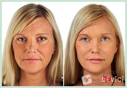 До и после фотоомоложения - 2