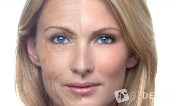 результат омоложния кожи лица