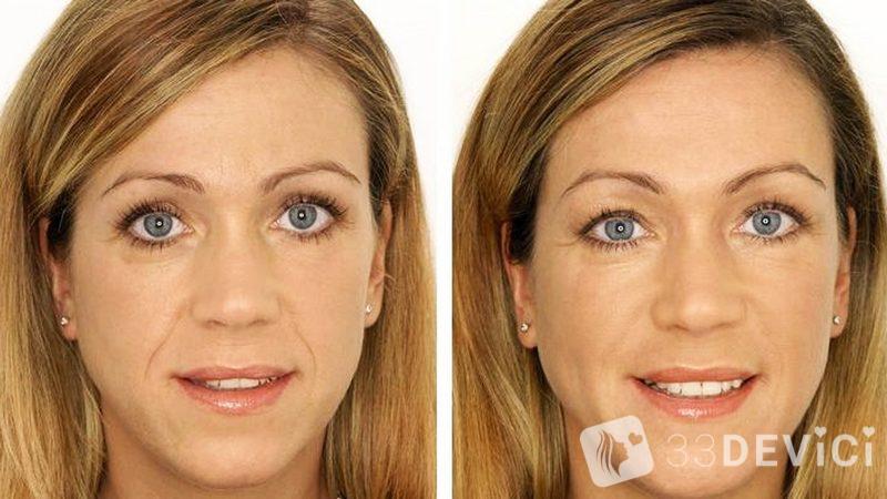 фото до и после фото омоложения