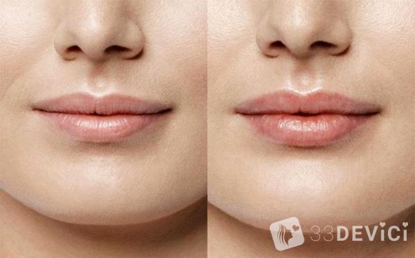 рестилайн для губ