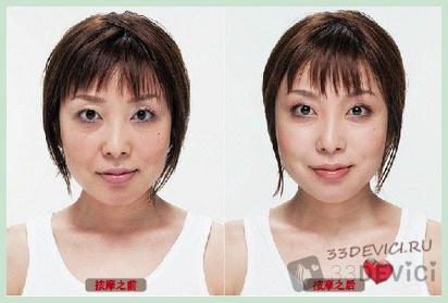 Асахи фото до и после 1