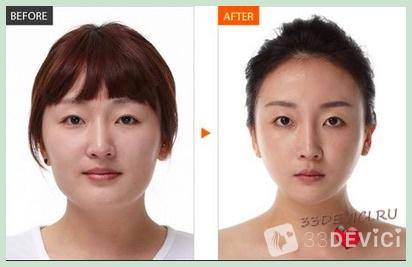 Асахи фото до и после 2