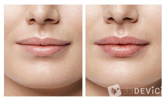volbella-lips