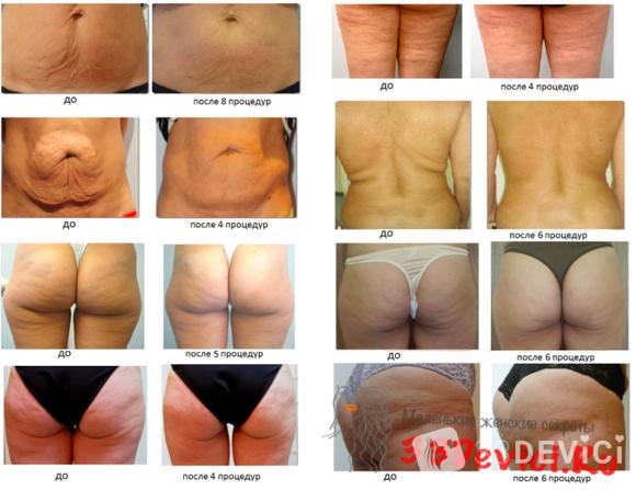 Фото до и после процедуры RF-лифтинга