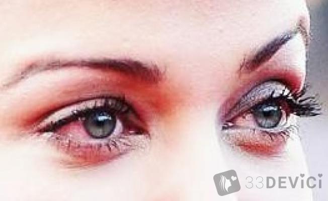 Красные глаза как лечить в домашних условиях