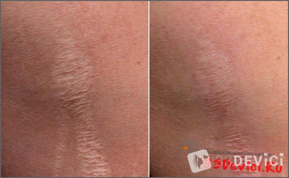 Фото до и после в процедуре газожидкостного пилинга