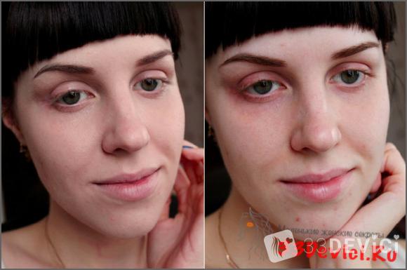 Фото до и после фруктового пилинга