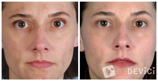 микродермабразия фото до и после