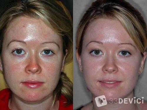 фото до и после проведения чистки кожных покровов лица
