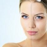 Лазерный пилинг лица: плюсы и минусы