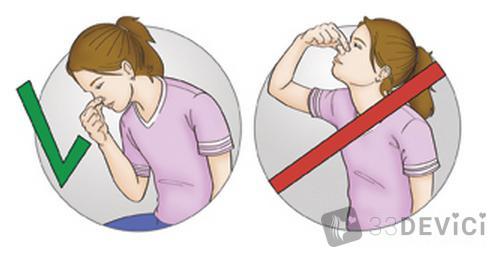 как правильно помочь при носовом кровотечении