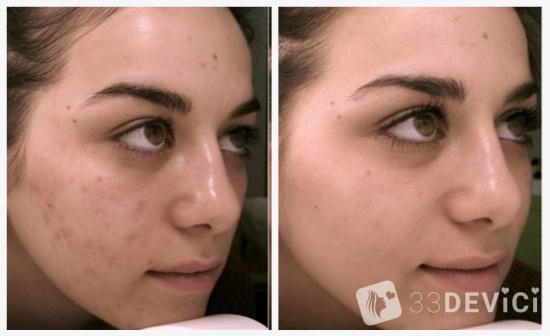 Фото до и после ТСА пилинга