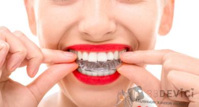 Уход за каппой ортодонтической