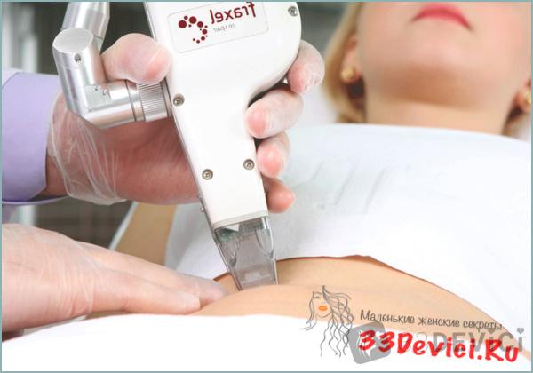 косметологические процедуры по удалению растяжек