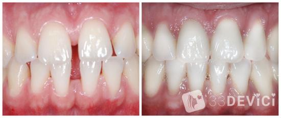 лингвальная брекеты фото до и после