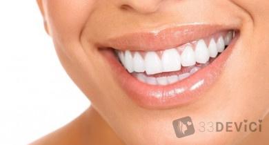 Лингвальные брекеты – залог красивой улыбки