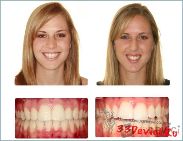 Фото неправильного прикуса, до и после