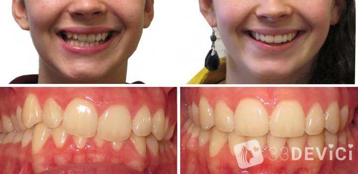 выравнивание зубов фото до и после