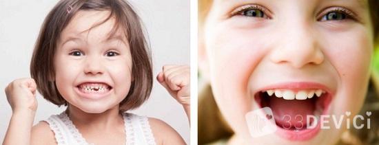 как выровнять зубки у ребенка