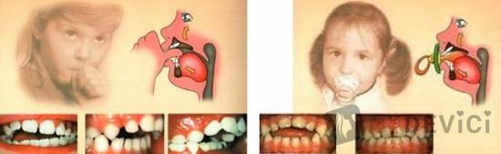 почему у детей растут неправильно зубки