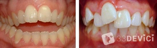 когда необходимо выравнивать зубы