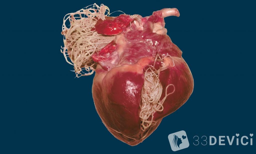сердечные глисты