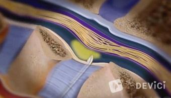 эпидуральная анестезия при родах последствия для ребенка