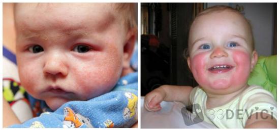 диатез на щеках у ребенка фото