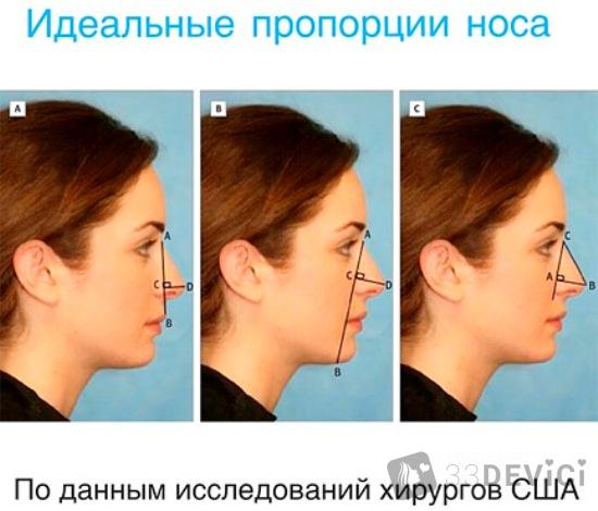 безоперационная ринопластика носа отзывы