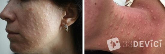 как выглядит лицо после уколов гиалуроновой кислоты