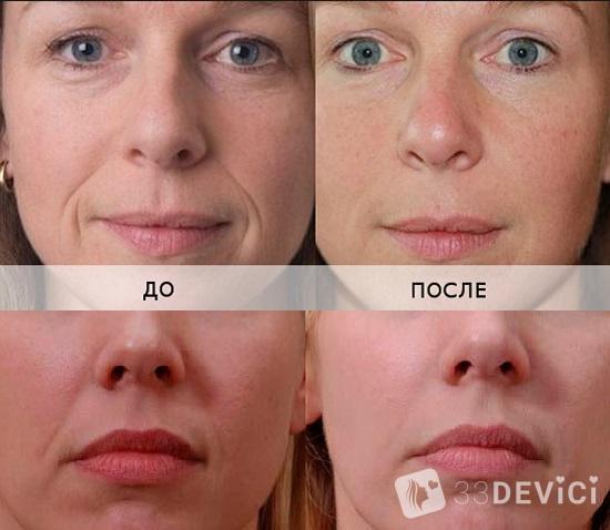 уколы гиалуроновая кислота для лица отзывы фото