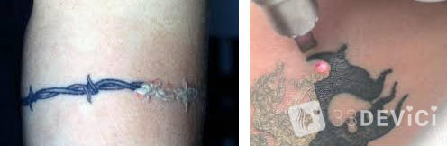 удаление тату лазером уход после процедуры
