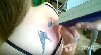 удаление тату лазером видео