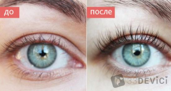 фото до и после применения сыворотки хипно лаш